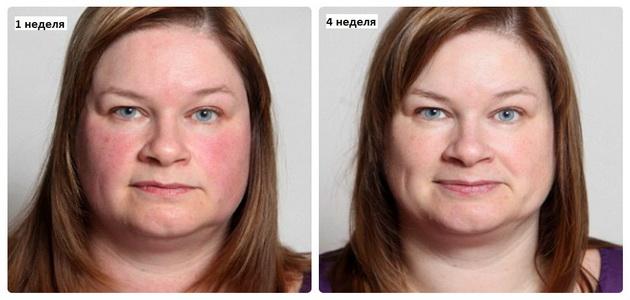Как восстановить лицо после запоя